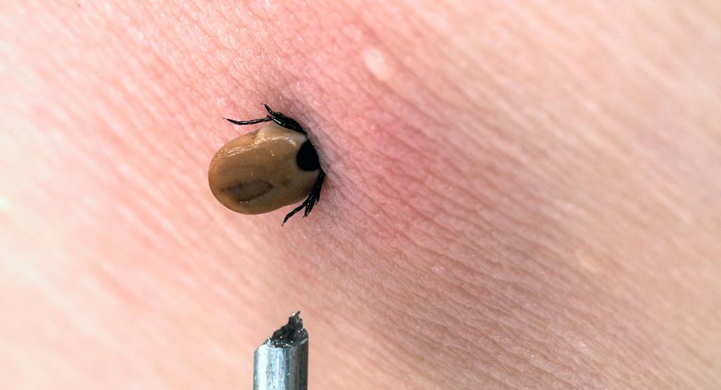 Tick Bites BabyCenter