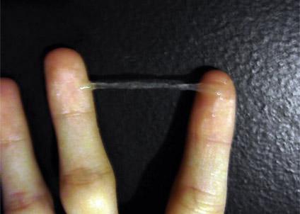 كيف يكون منظر إفرازات عنق الرحم المخاطية صور بيبي سنتر آرابيا