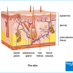 What Causes Acne Diagram Wiring For Rear Trailer Lights Health Information Bupa Uk An Image Showing The Skin