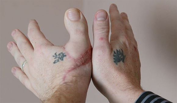 Man Loses Thumb Has Replaced With Big Toe