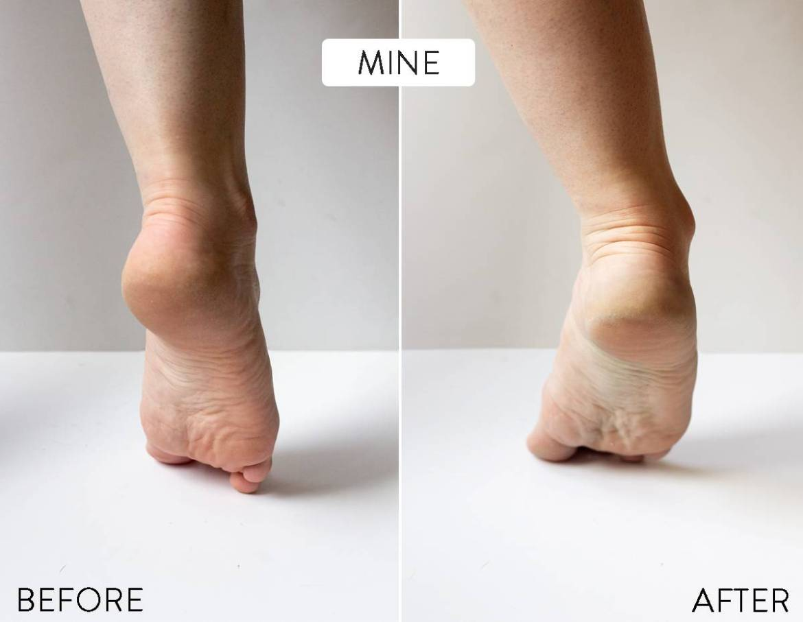Before and after: Listerine foot soak