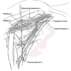 Radial Nerve Diagram Honda Trx 300 Wiring Cureus Injury Of The In Arm A Review Figure 1 Schematic View Axillae Illustrating Proximal Coursing From Its Origin Posterior Cord Brachial Plexus To