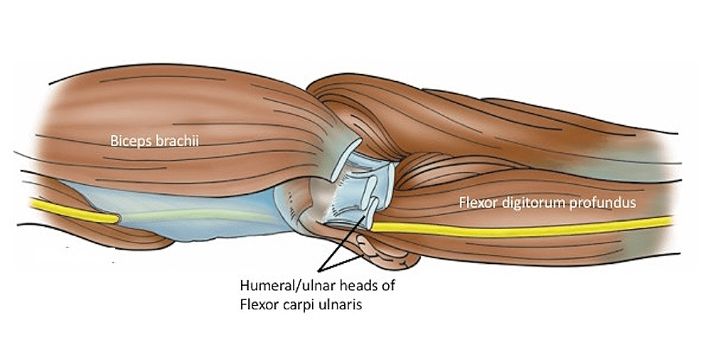 ulnar nerve diagram 1997 international 4700 brake light wiring cureus the deep fascia of forearm and an figure 1 schematic drawing yellow in distal left arm proximal its muscular relationships