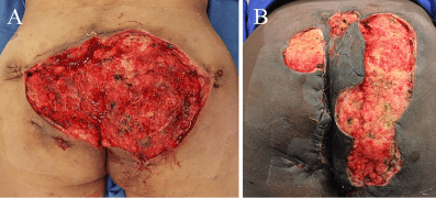Cureus | Negative Pressure Wound Therapy with Instillation and Dwell Time in  the Surgical Management of Severe Hidradenitis Suppurativa