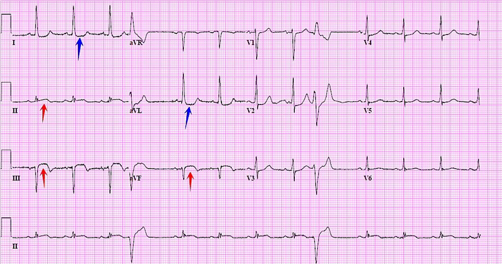 Cureus   Inferior Wall ST-elevation Myocardial Infarction ...