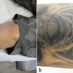 Cureus Osteoma Cutis An Adverse Event Following Tattoo Placement