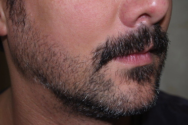 More New Yorkers with depleted beards are getting surgical facial hair procedures, doctors told DNAinfo New York.<br /><br /><br /><br /><br />