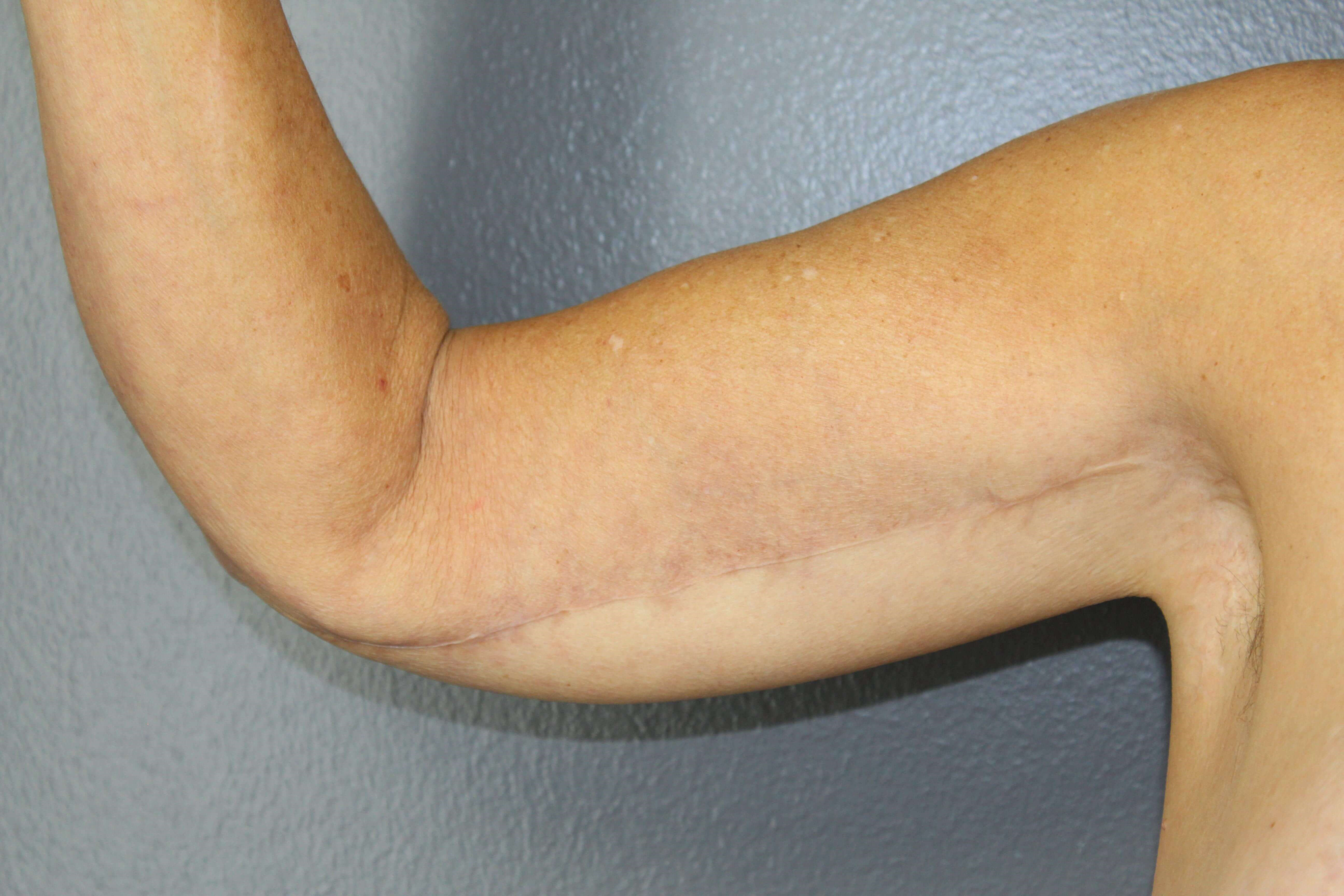 2b52b3888f Loose Skin On The Upper Arm - Year of Clean Water