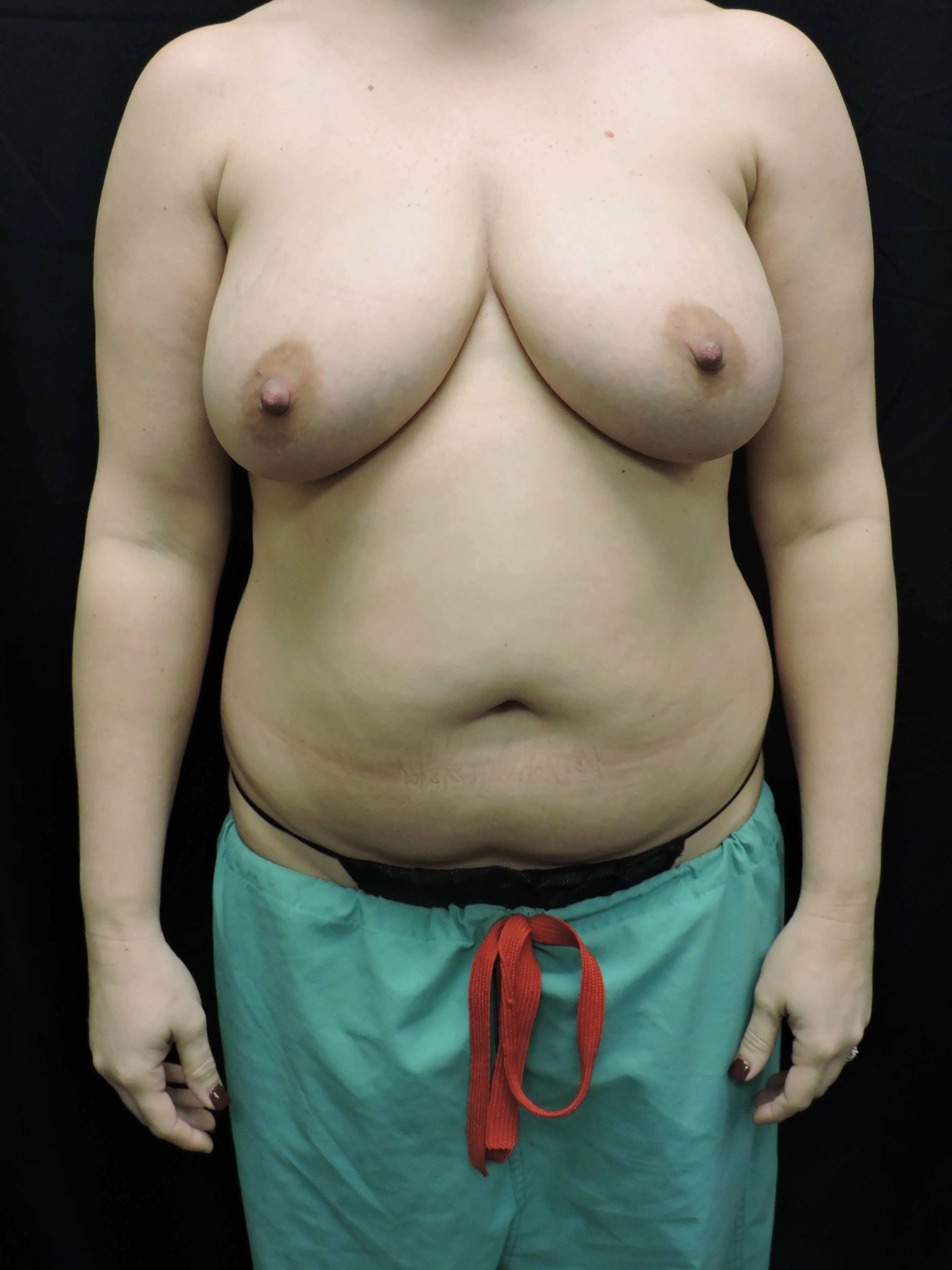 MOMMY MAKE OVER Tummy Tuck Flank Liposuction and Breast Lift