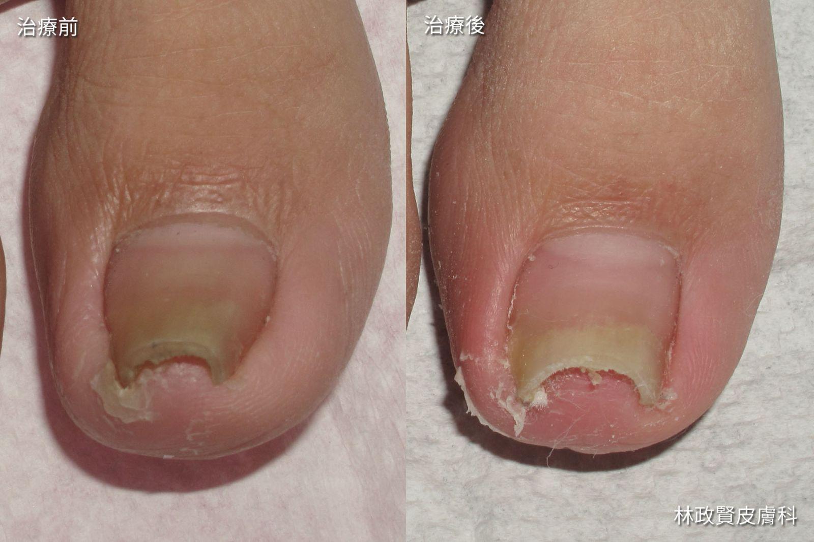 變厚及變色 「捲甲癥」常被誤為灰指甲 | 高雄林政賢皮膚科診所