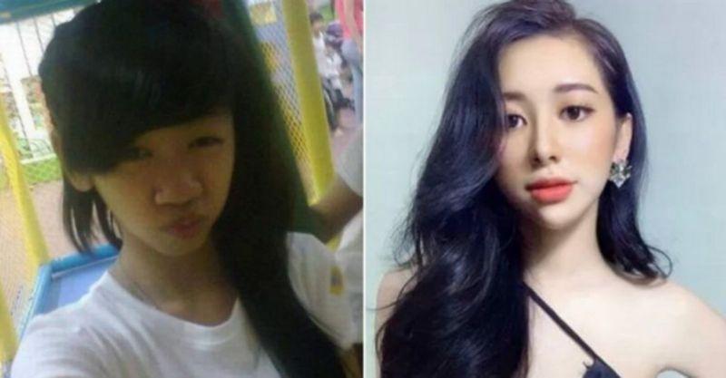 PERBEZAAN wajah Tuong Vy sebelum dan selepas menjalani pembedahan plastik. FOTO Agensi