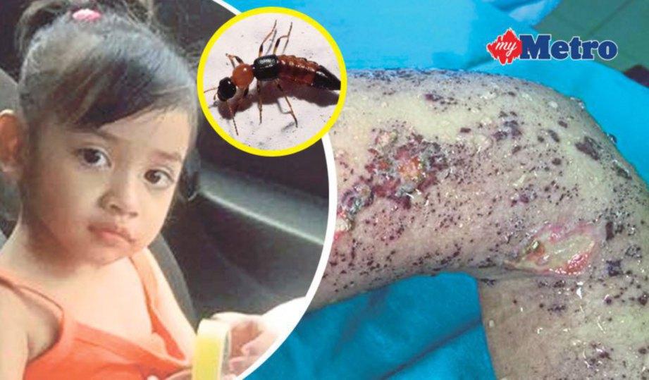 Semut kayap makan kulit  Harian Metro