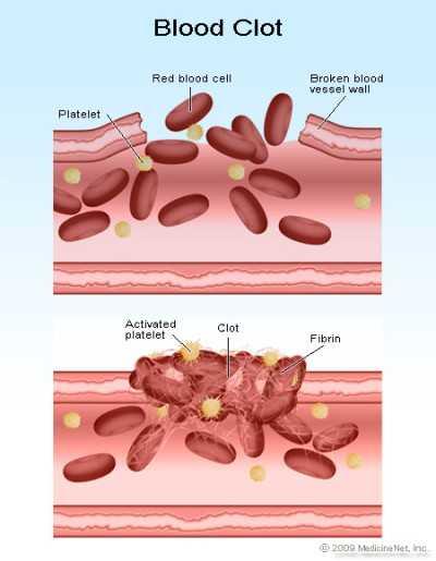 Mengapa Darah Penderita Hemofilia Sukar Membeku : mengapa, darah, penderita, hemofilia, sukar, membeku, Penyakit, Darahnya, Tidak, Membeku, Terluka, Disebut, Sebutkan