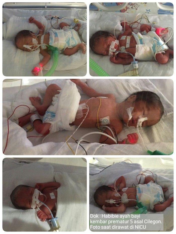 Bayi Baru Lahir Kembar : lahir, kembar, Ingin, Punya, Kembar?, Waspadai, Risikonya, Halaman, Kompasiana.com