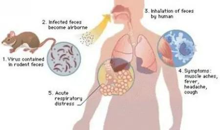 Hantavirus Pulmonary Syndrome! - By Dr. Radhika A (Md) | Lybrate
