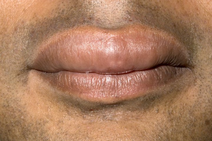 Picture Of Swollen Lips Ca By Angioedema