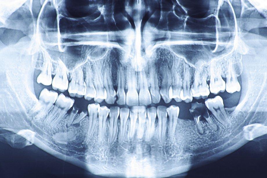 The health risks of gum disease  NHS