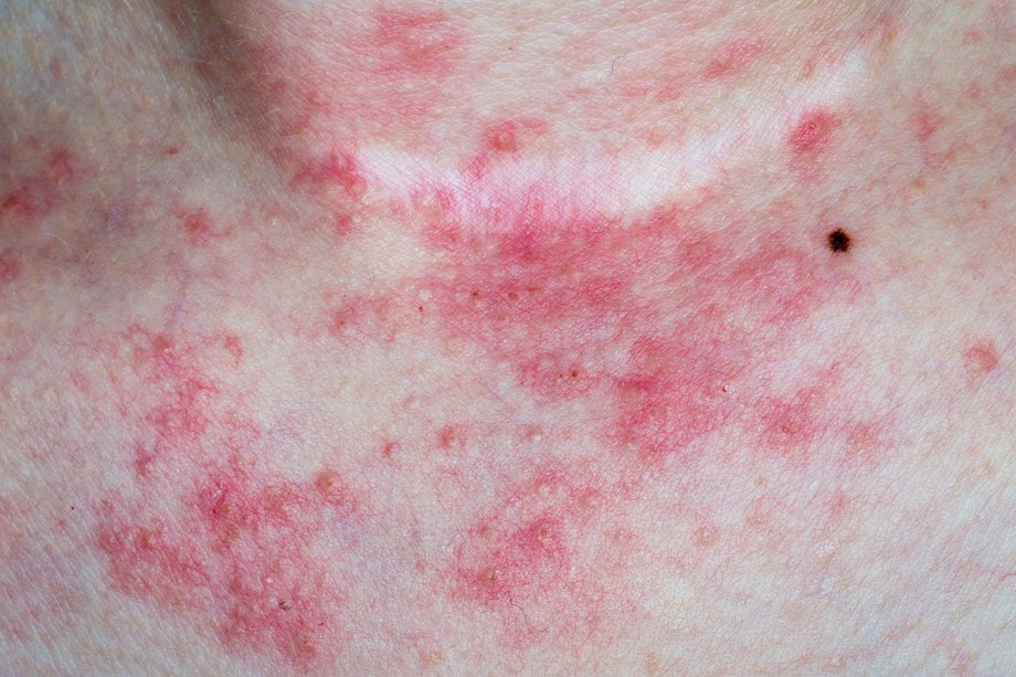 common skin conditions nhs