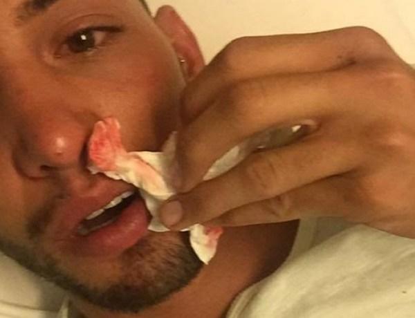 #SS8 : Sacha, agressé et défiguré en sortant de boîte car il est gay