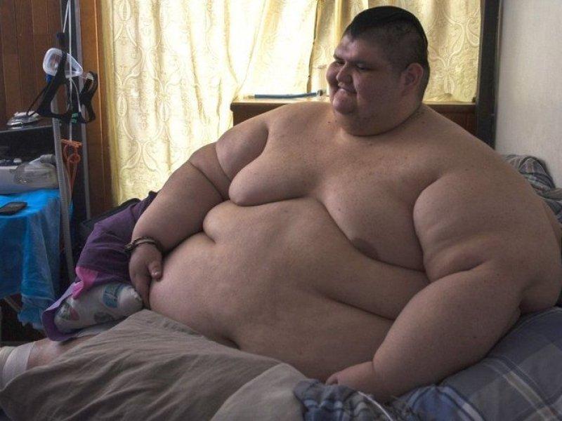 Ancien homme le plus gros au monde, il a déjà perdu 300 kilos [photo]