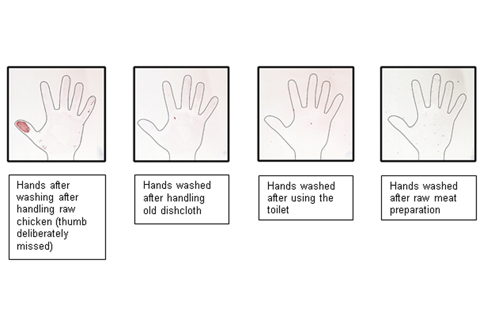 [Withdrawn] The invisible bugs that lurk on your hands