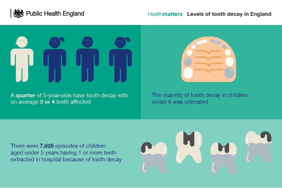 adult tooth diagram math tree generator health matters: child dental - gov.uk