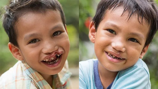 CHANGE IS POSSIBLE. With physical change came emotional change. Annie set up these beauty shoots for the cleft palate patients to redefine beauty. Photo by Ann-Kathrin Lange
