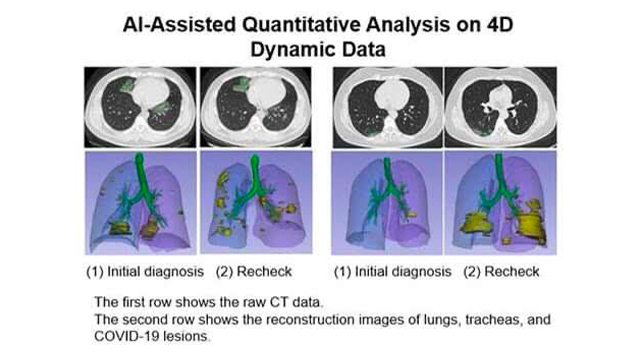 TECHNOLOGY. Photos show results from the artificial intelligence- assisted CT scan analyzer, which could indicate the probability of a coronavirus infection. Photo from Huawei