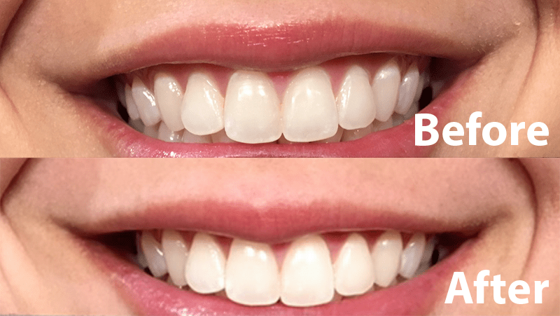Best Teeth Whitening Products for Your Wedding Smile – ottawa