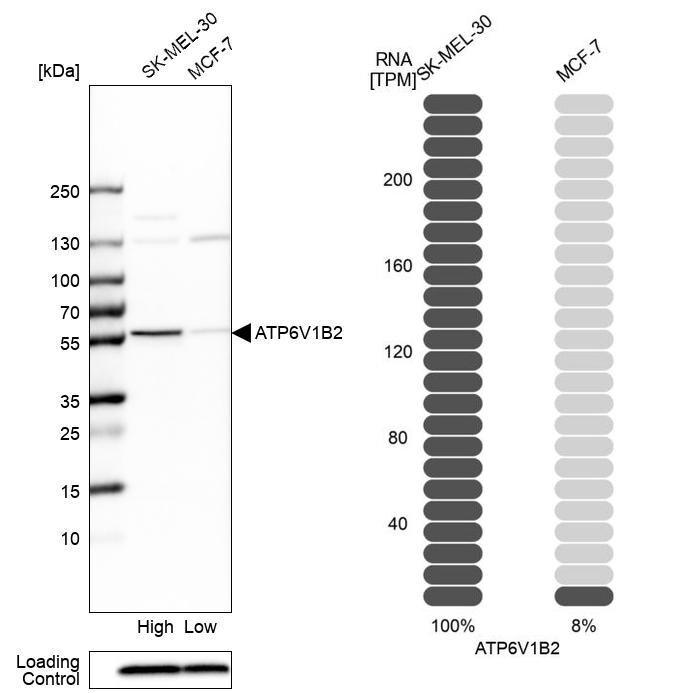 ATP6V1B2 Antibody (PA5-52518)