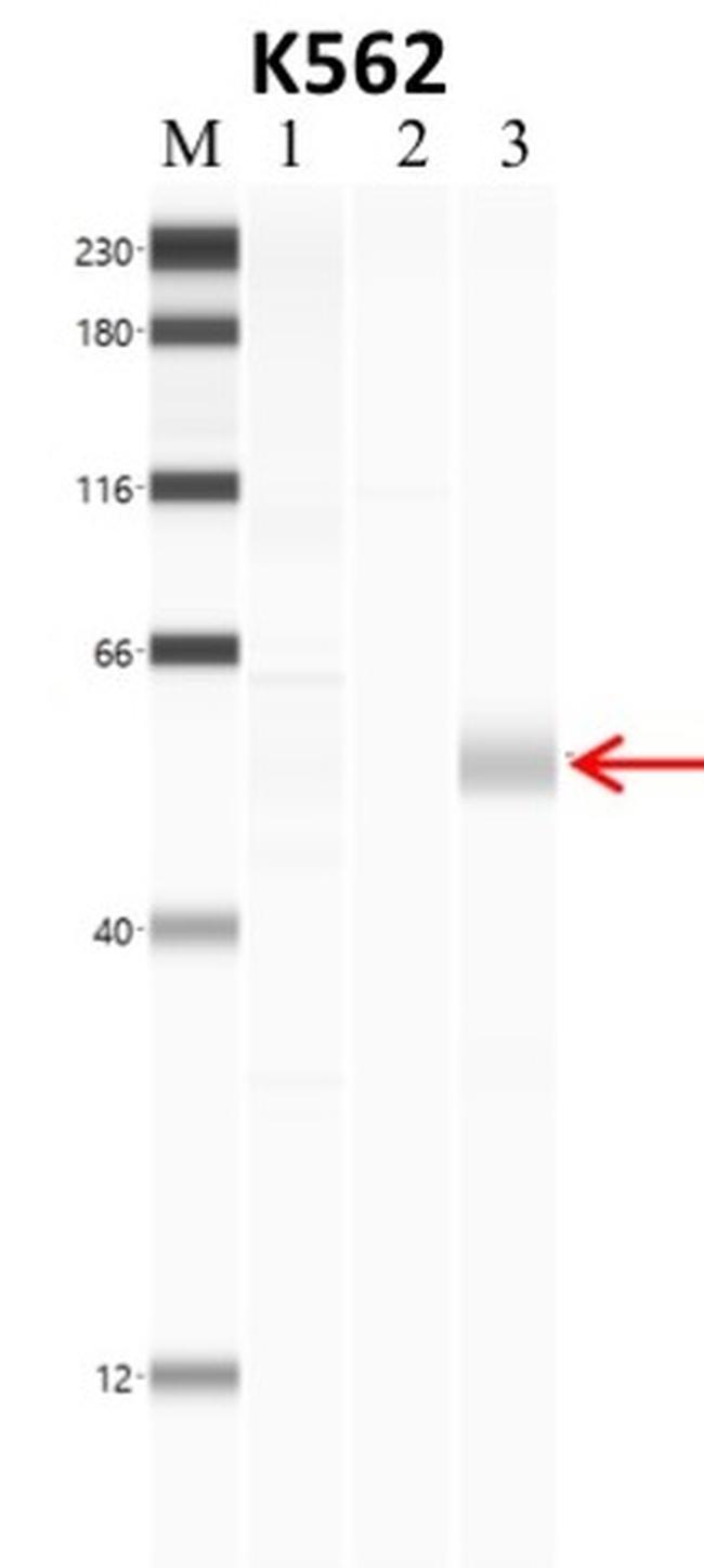 Phospho-SMAD2 (Ser465, Ser467) Antibody (701582)