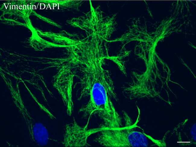 VIM Antibody (UM800055CF)