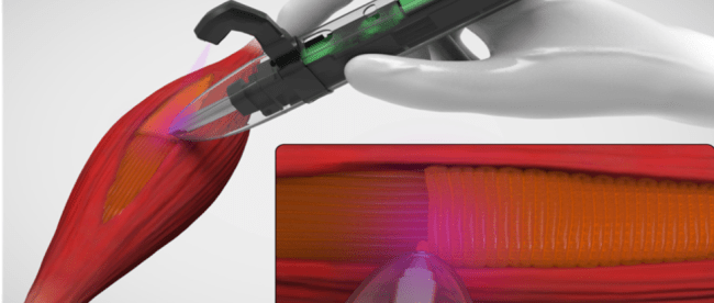 computer generated image shows how the 3d bioprinter can place tissue in the defect site of the muscle. A hand is seen holding the bioprinter right over the muscle that requires regrowth