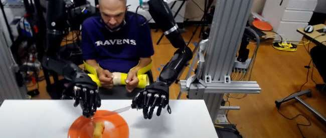 Buz seen controlling both prosthetic arms using BCI