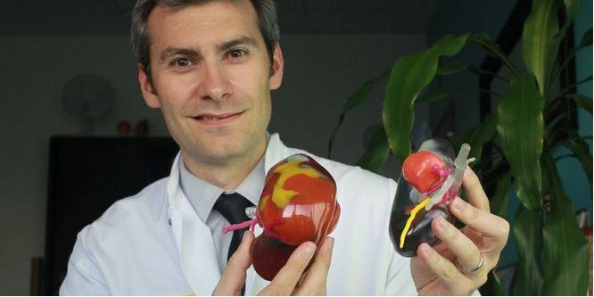 CHU de Bordeaux: l'impression en 3D sauve le rein