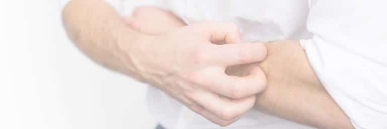 eczema de contact