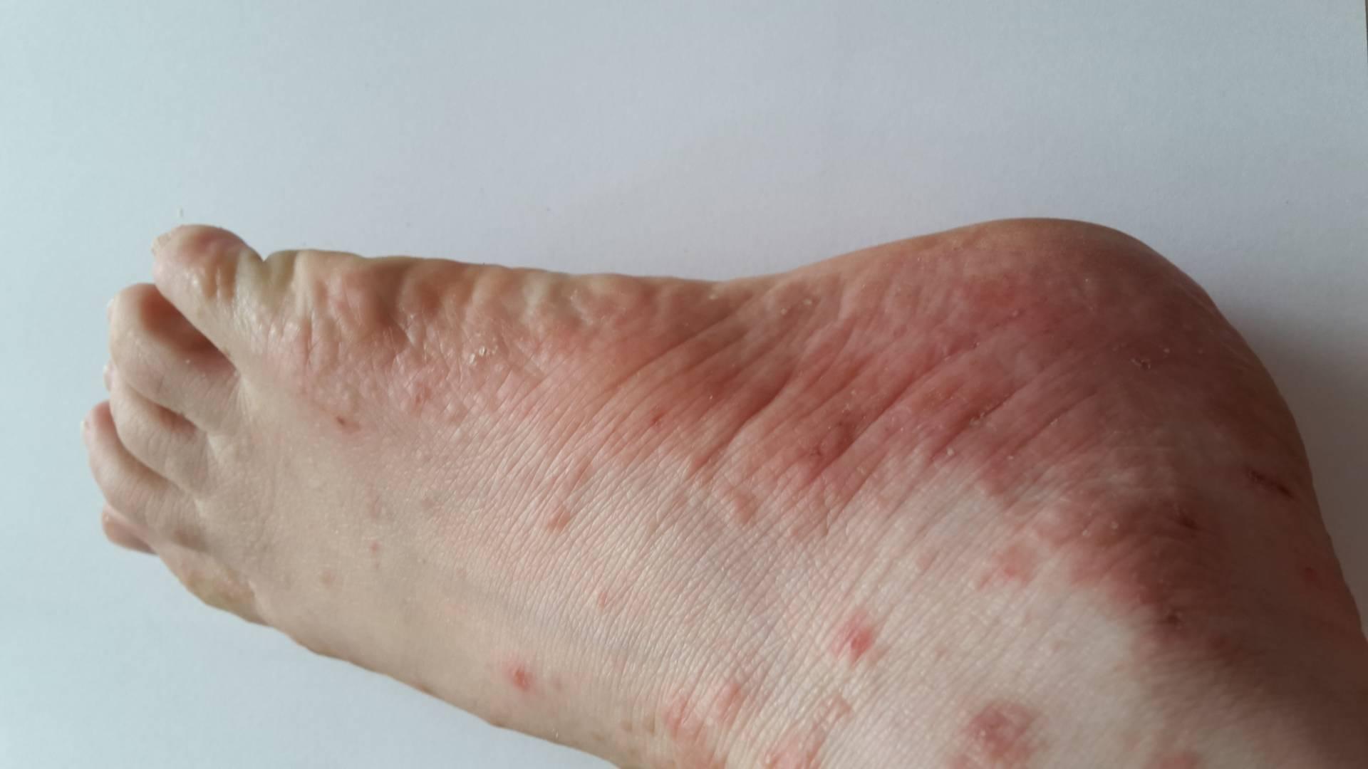 plaque rouge sous le pied