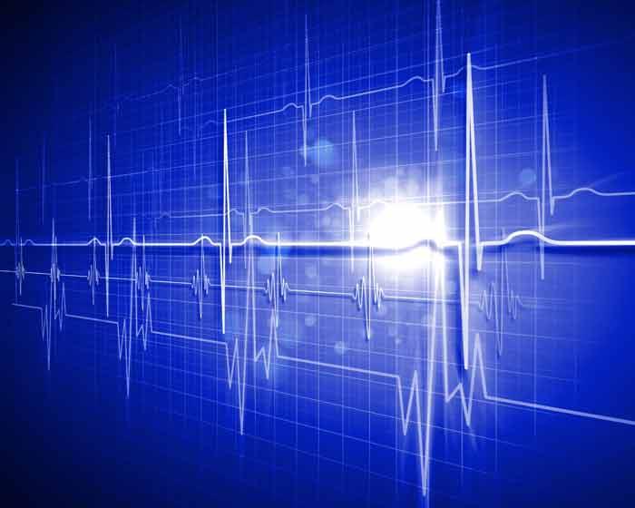 Max-OT Cardio – An Introduction