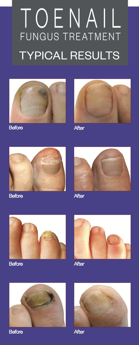Toenail Fungus Laser Treatment Brochures
