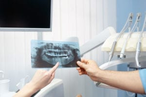 A dentist holds a dental x-ray out to show a patient they also have dental needs. The dentist wants to prevent this patient from becoming a patient with unscheduled dental treatment plans.