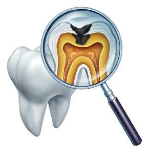 Closer examination of a reason for denial from insurance on an existing filling was necessary before writing the dental office collection scripts.