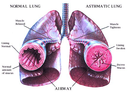 Asthma is a chronic inflammatory disorder of airways, in which your ...