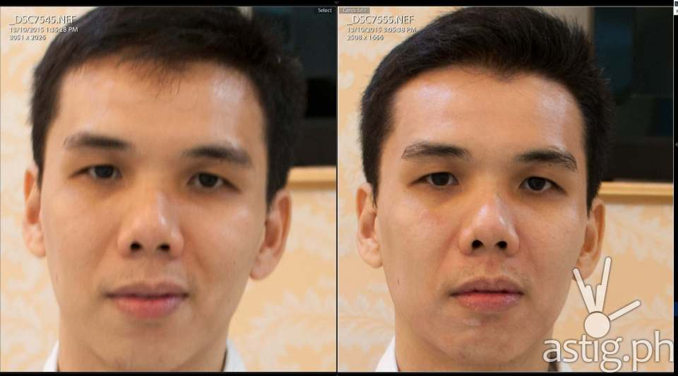 Before (left) and after (right) Luminisce Baby Skin Laser anti-aging treatment