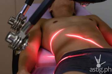 The Zerona machine projects low level LASER onto your body to break down fat cells