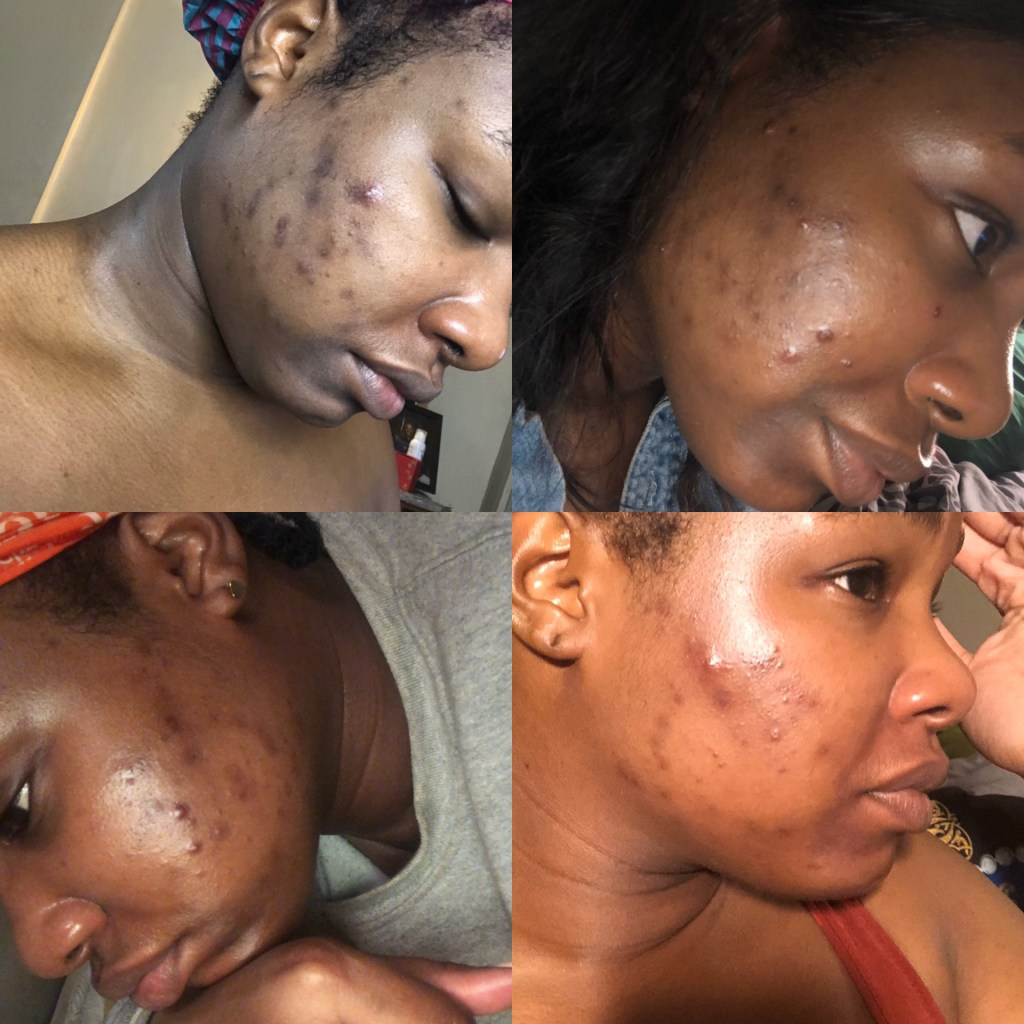 Adult Acne suffering