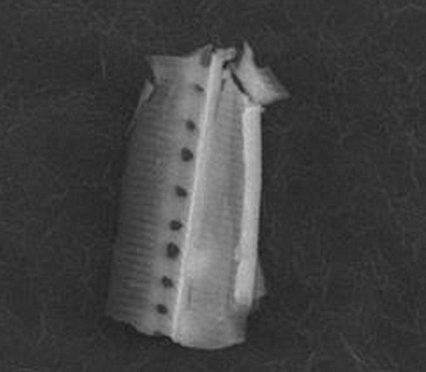 A parede celular de uma diatomácea
