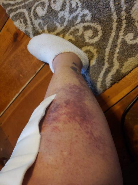 knee replacement surgery week 3