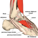 Is It Tendonitis Or Referred Pain, And Either Way What Can You Do About It?