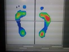 feet(2)