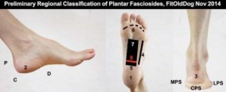 Plantar fasciitis distribution